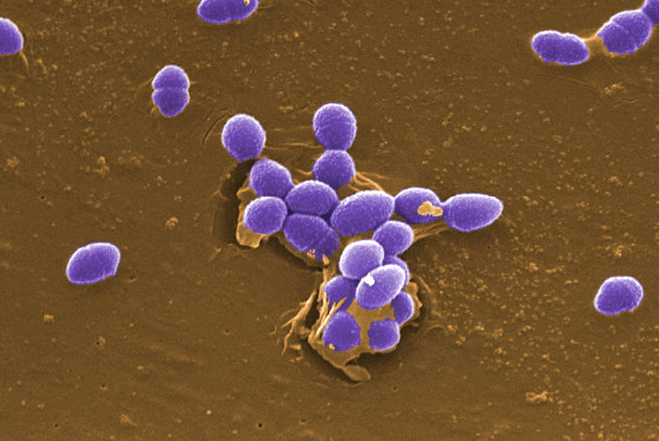 This digitally-colorized scanning electron micrograph (SEM) depicted large numbers of Gram-positive Enterococcus faecalis sp. bacteria.