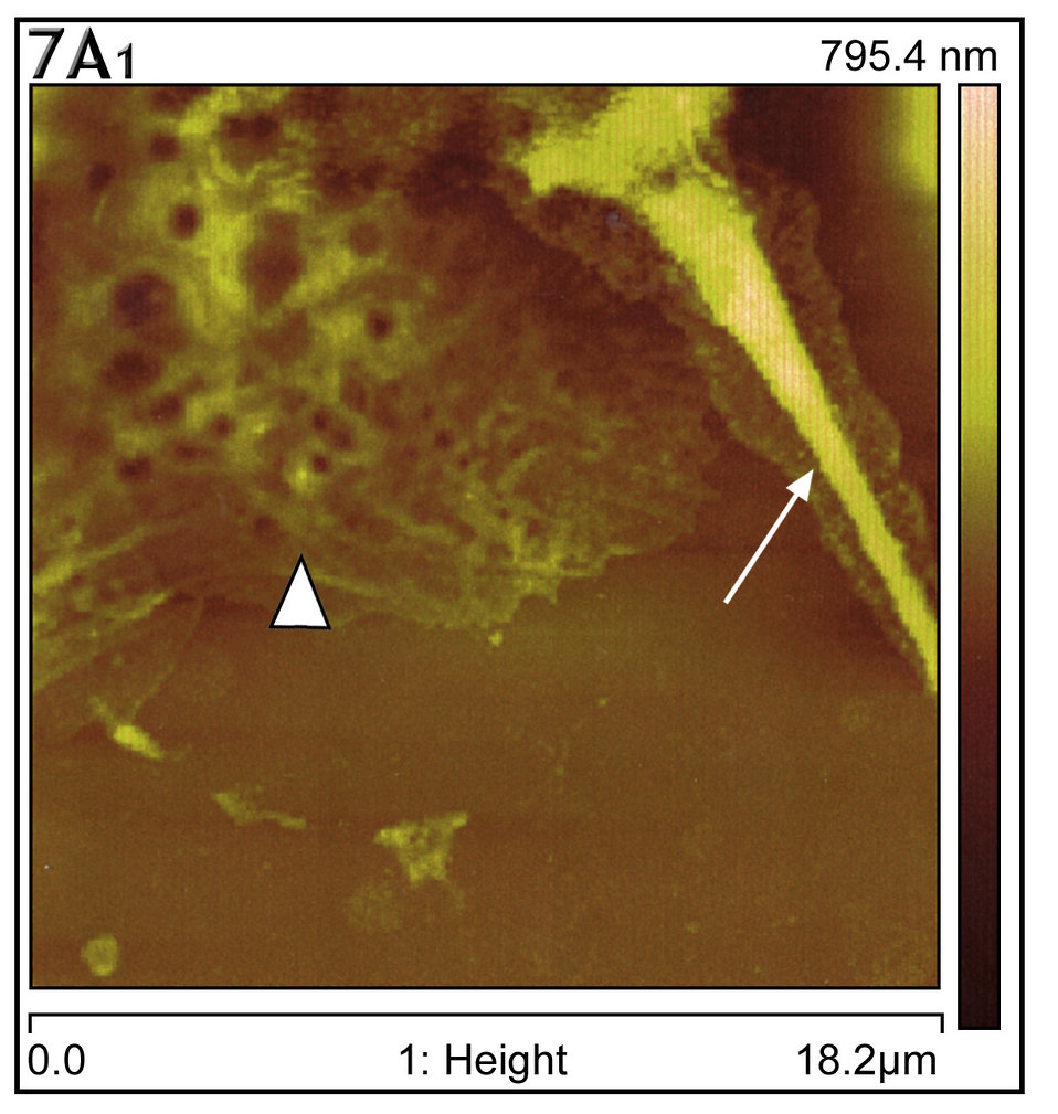 This AFM showed gross thickening of cell cytoplasmic skeletal filaments (arrowhead) and pseudopodia (arrow).