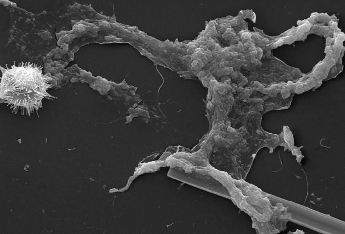 This scanning electron micrograph (SEM) of an untreated water specimen extracted from a wild stream mainly used to control flooding during i