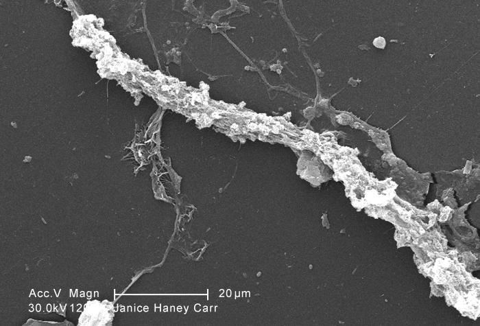 Magnified 1200X, this scanning electron micrograph (SEM) of an untreated water specimen extracted from a wild stream mainly used to control