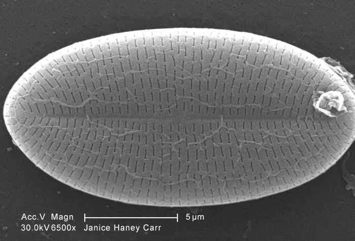 Magnified 6500X, this scanning electron micrograph (SEM) of an untreated water specimen extracted from a wild stream mainly used to control