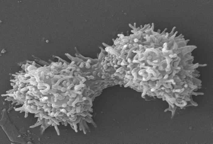This scanning electron micrograph (SEM) revealed two Acanthamoeba polyphaga protozoa, as they were interacting through their numerous projec