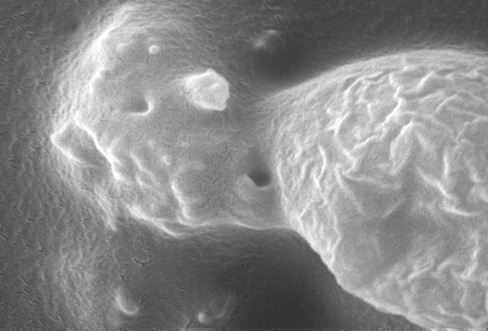 This scanning electron micrograph (SEM) revealed some of the ultrastructural features seen on the surface of an Acanthamoeba polyphaga proto