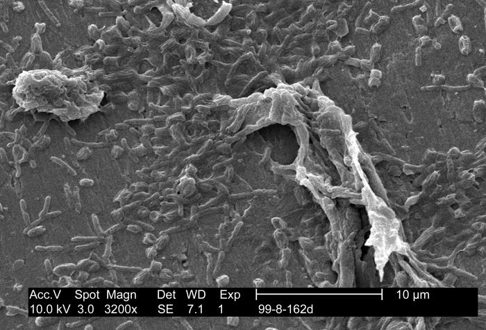 This scanning electron micrograph (SEM) depicts findings uncovered during Legionella pneumophila research, which investigated the associatio
