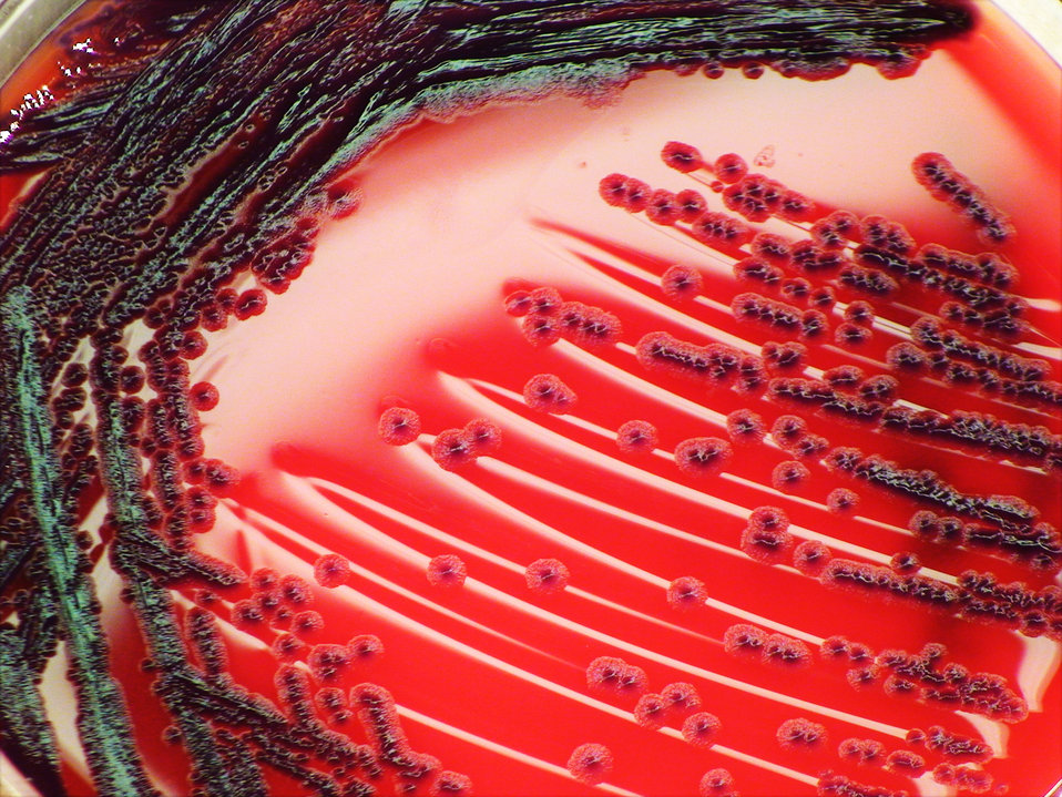 As a closer view of PHIL 12433, this photograph depicts the colonial morphology displayed by Gram-negative Chromobacterium violaceum bacteri