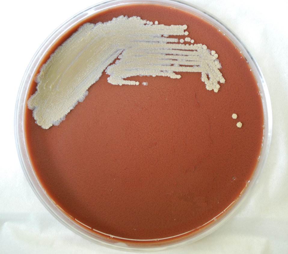 This photograph depicts the colonial morphology displayed by Gram-negative Burkholderia pseudomallei bacteria, which was grown on a medium o