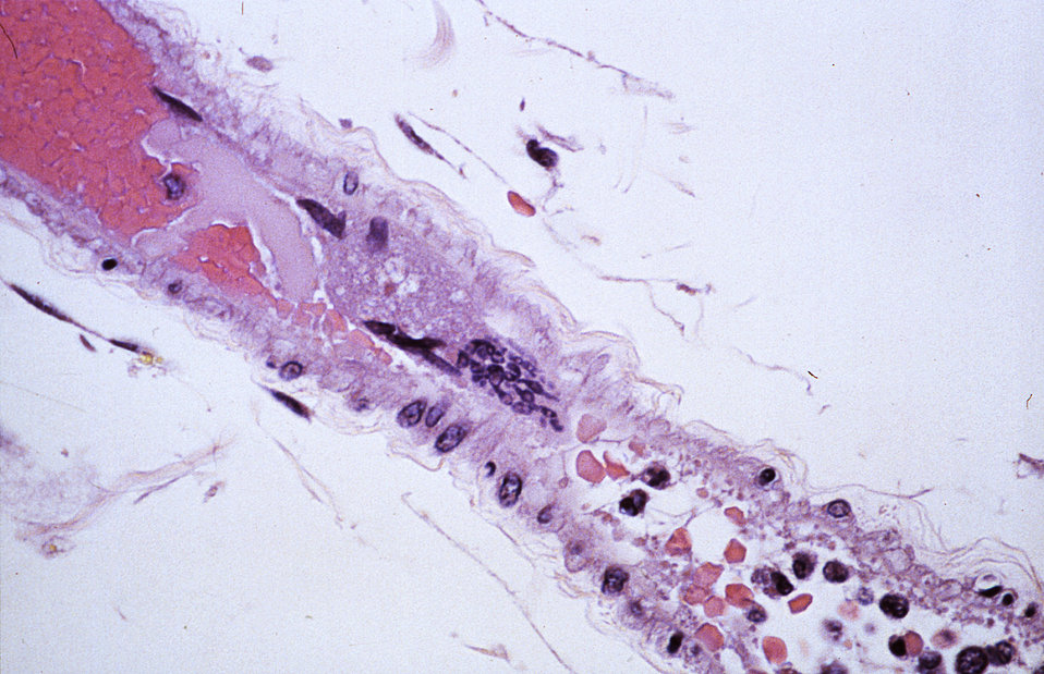 This photomicrograph revealed some of the cytoarchitectural histopathologic changes associated with a Nipah virus infection, in this particu