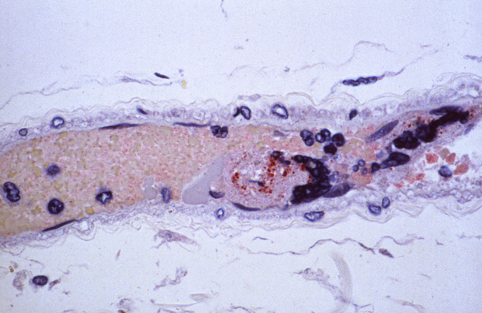 Using immunohistochemical (IHC) technique, this photomicrograph revealed some of the cytoarchitectural histopathologic changes associated wi