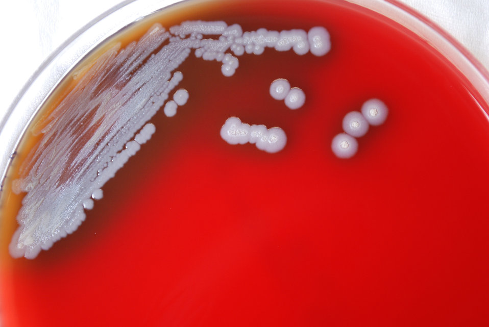 A closer view of PHIL 12275, this photograph depicts the colonial morphology displayed by Gram-negative Burkholderia pseudomallei bacteria,