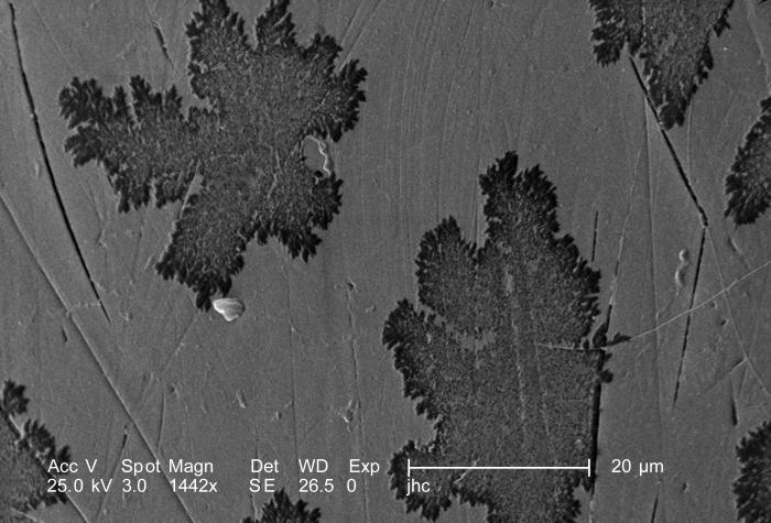Magnified 1442X, twice that of PHIL 9950 and 9951, this scanning electron micrograph (SEM) revealed some of the ultrastructural details foun