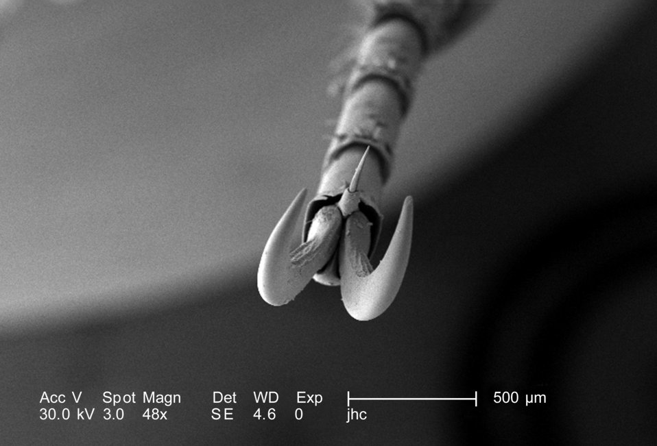At a magnification of 188X, half that of PHIL 9947, this scanning electron micrograph (SEM) depicted a head-on view of the distal clawed tip