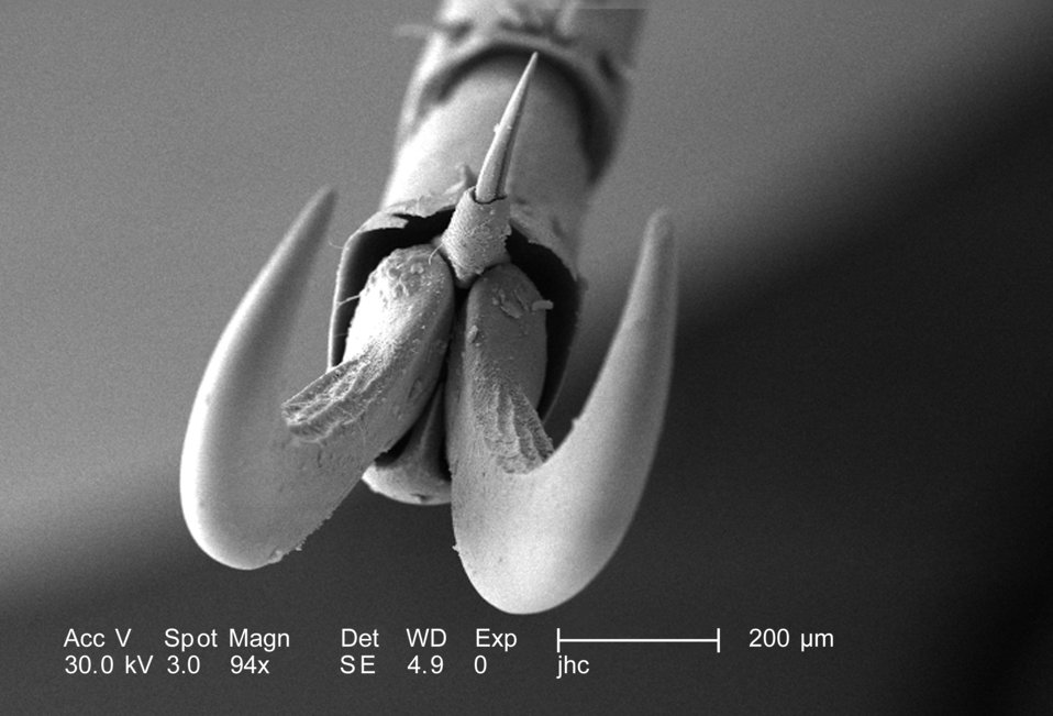 At a low magnification of 94X, this scanning electron micrograph (SEM) depicted a head-on view of the distal clawed tip of an adult 'figeate