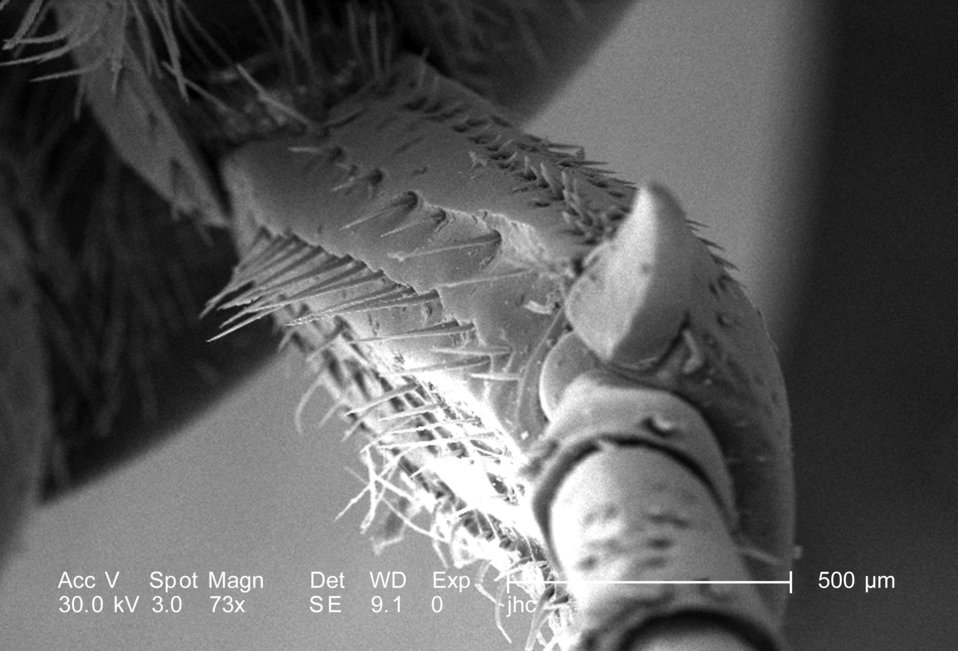 Under a low magnification of only 73x, this scanning electron micrograph (SEM) depicted the region of one of the legs of an adult 'figeater'