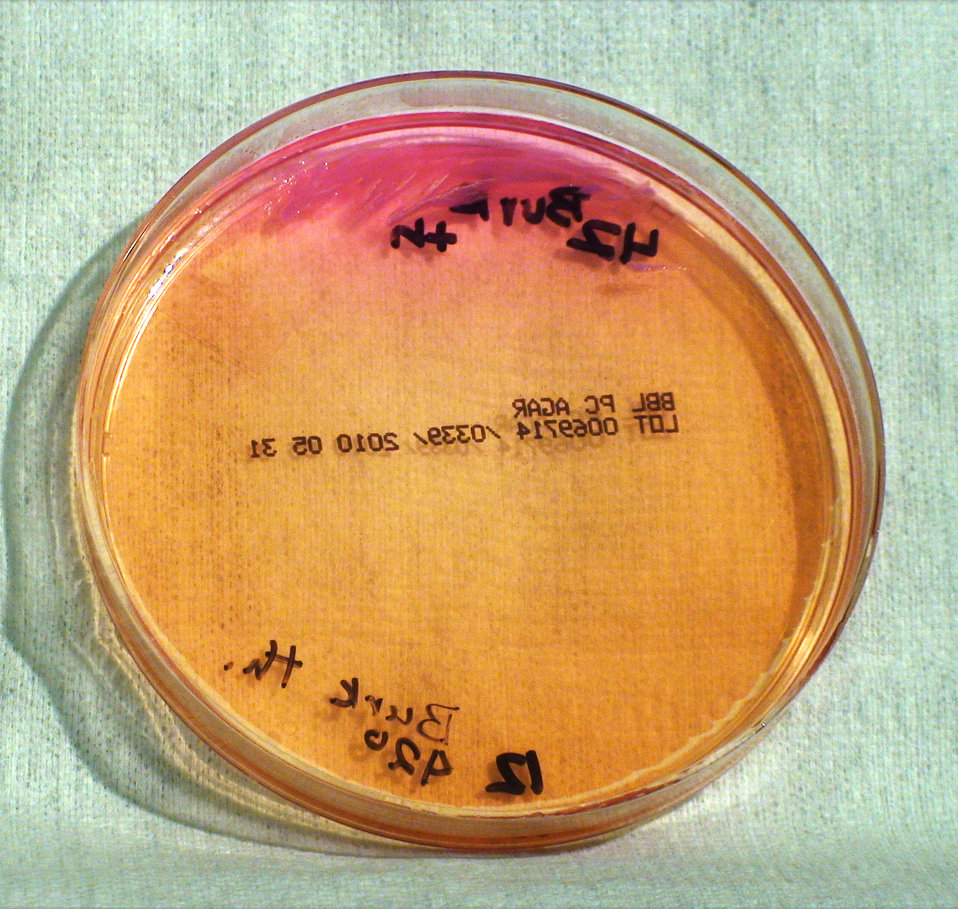 This photograph depicts the colonial morphology displayed by Gram-negative Burkholderia thailandensis bacteria, which was grown on a medium