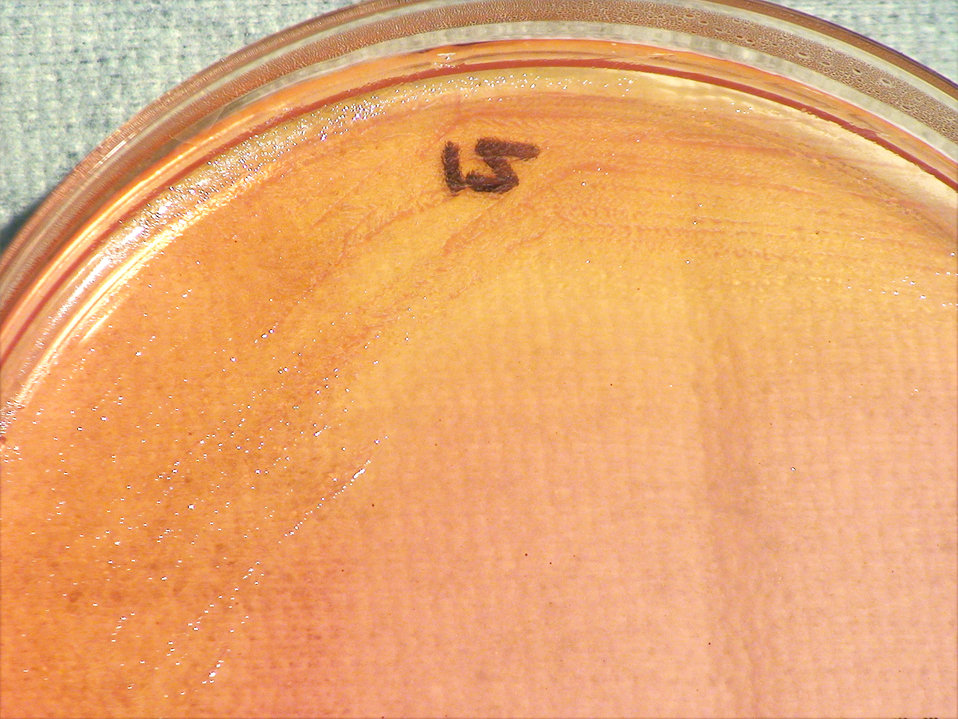 As a closer view of PHIL 12419, this photograph depicts the colonial morphology displayed by Gram-negative Burkholderia thailandensis bacter