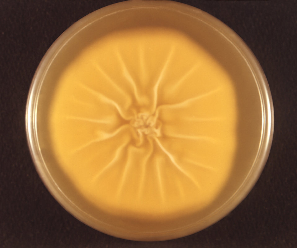 This image depicts a reverse view, i.e., view from the bottom, of a Petri dish in which a colony of the dermatophytic fungal organism Tricho