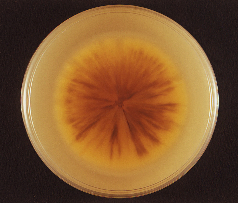 This image depicts the reverse view, i.e., view from the bottom, of a Petri dish culture in which was growing the teleomorph, or end-stage p