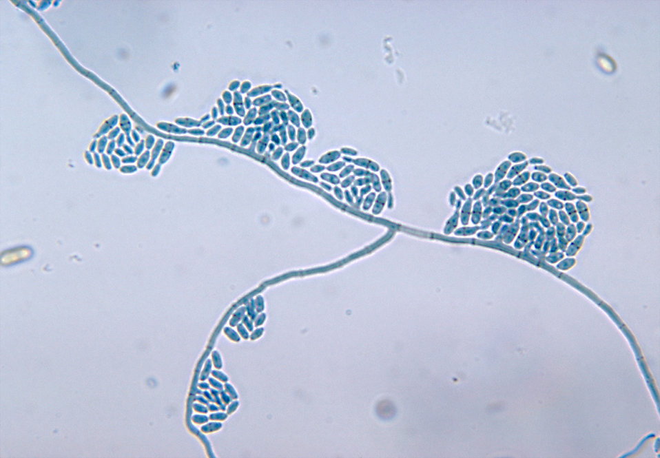 This micrograph reveals the mycelia and conidia of Hortaea werneckii, formerly Cladosporium werneckii.