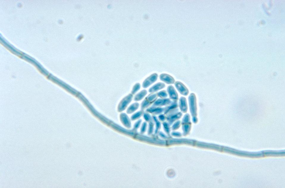 This micrograph reveals a conidiophore and conidia of Hortaea werneckii, formerly Cladosporium werneckii.