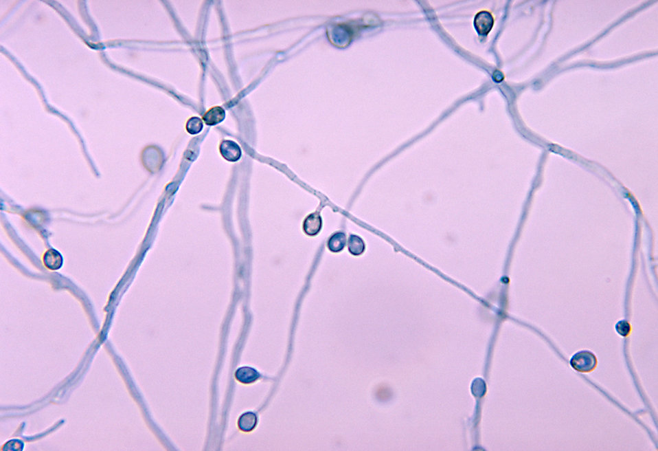 This micrograph depicts a number of mycelia with attached conidia of the fungual organism Pseudallescheria boydii.