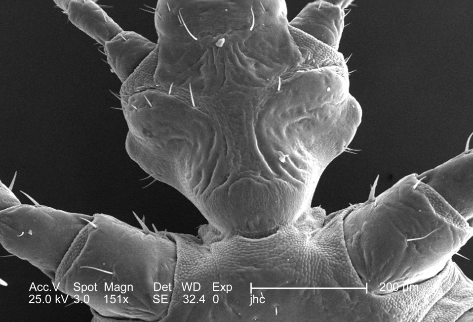 From a ventral perspective, and at a low magnification of 151x, this 2006 scanning electron micrograph (SEM) depicted an enlarged view of th