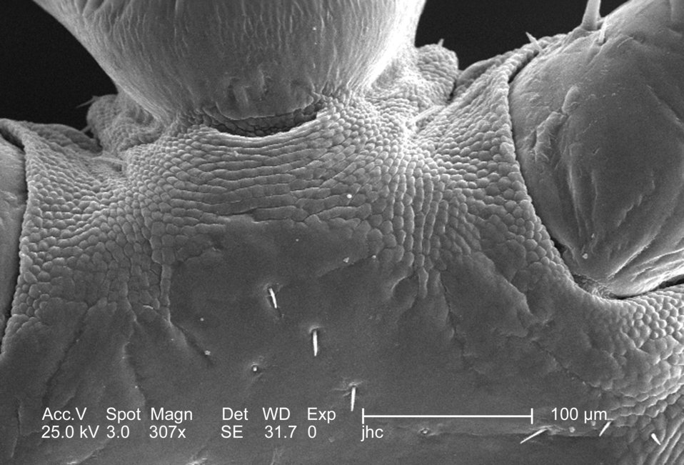 From a ventral perspective, and at a moderate magnification of 307x, this 2006 scanning electron micrograph (SEM) depicted an enlarged view