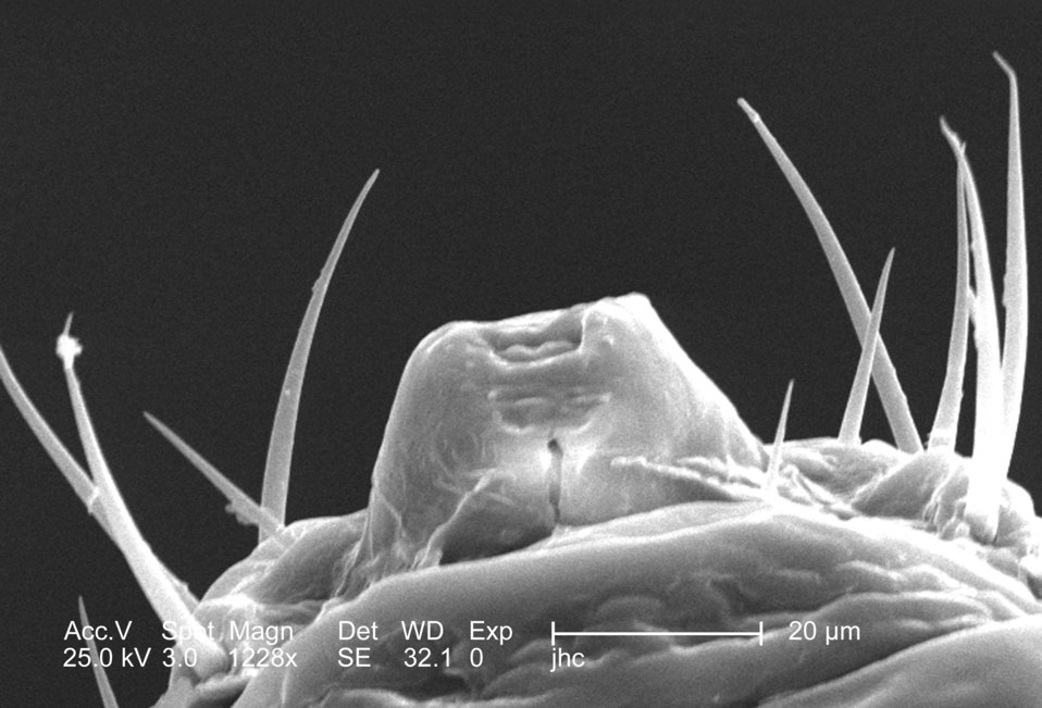 This was one of five scanning electron micrographic (SEM) images (PHIL# 9243 - 9247), successively magnified at higher and higher values, wh