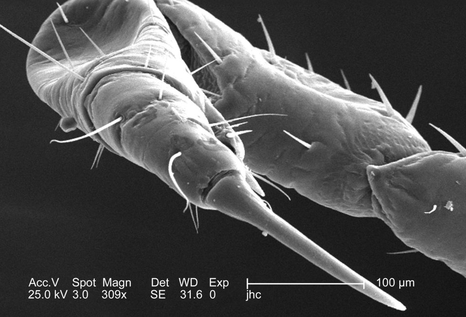 At a moderate magnification of 309x, this 2006 scanning electron micrograph (SEM) depicted an enlarged dorsal view of the right flexed forel