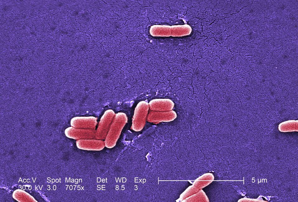 Under a magnification of 7075x, this colorized scanning electron micrograph (SEM) depicted a number of Gram-negative Escherichia coli bacter