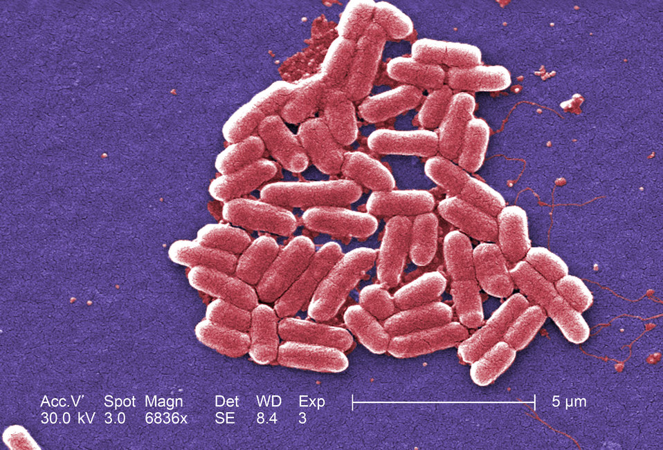 Under a magnification of 6836x, this colorized scanning electron micrograph (SEM) depicted a number of Gram-negative Escherichia coli bacter