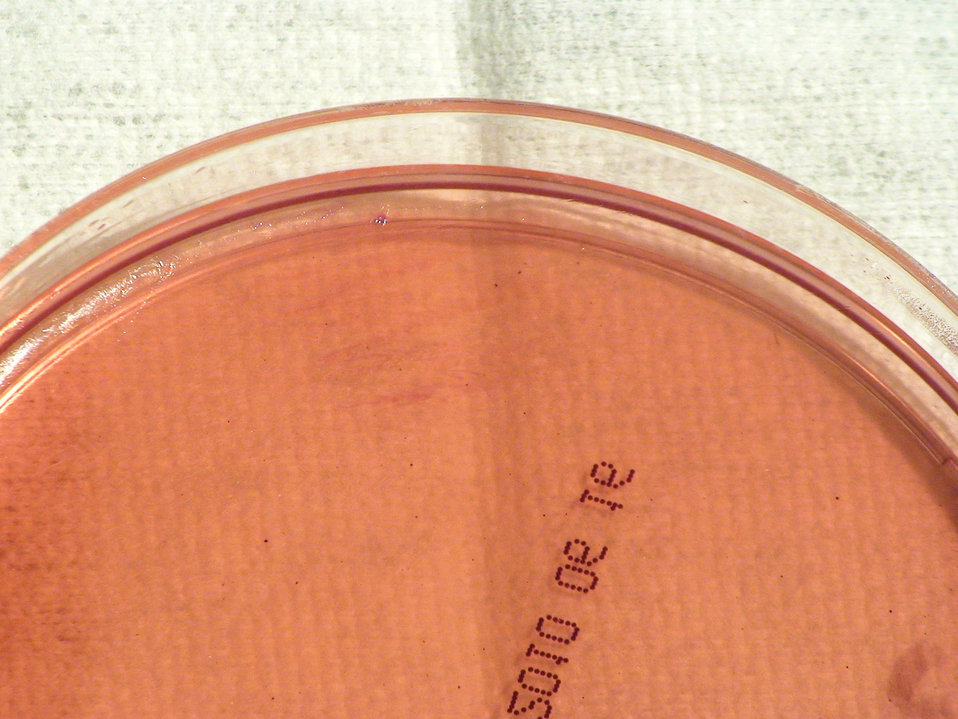 This photograph depicts the lack of colonial growth displayed by Gram-negative Brucella abortus bacteria, which was grown on a medium of Mac