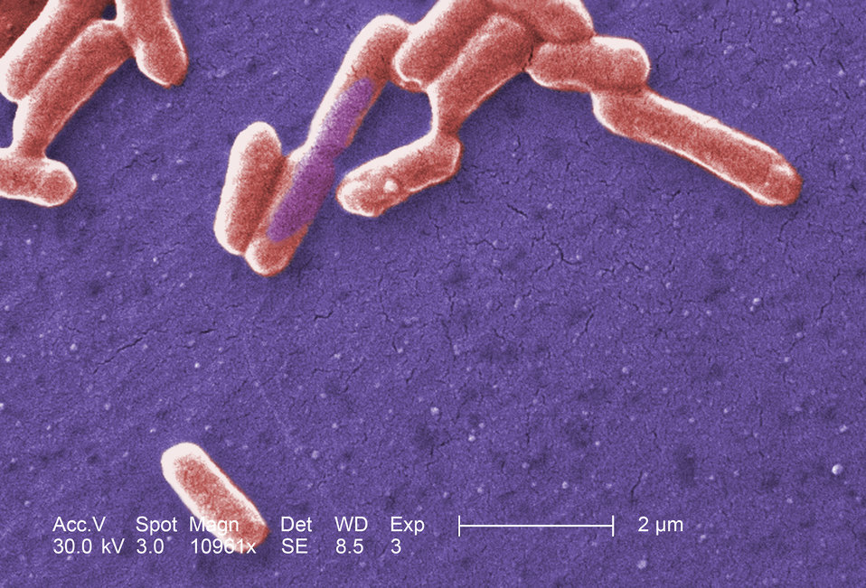 Under a high magnification of 10961x, this colorized scanning electron micrograph (SEM) depicted a number of Gram-negative Escherichia coli