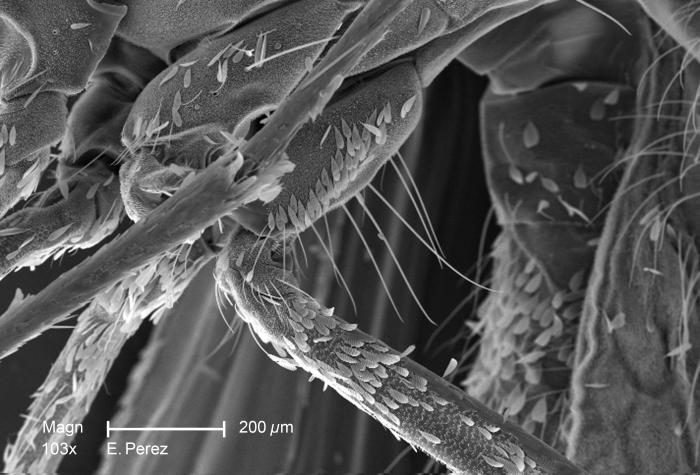 Magnified 103X, this scanning electron micrograph (SEM) revealed some of the minute exoskeletal details found on the surface of what was tho