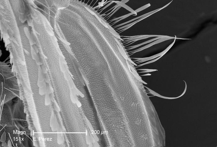 At a magnification of 151X, this scanning electron micrograph (SEM) revealed some of the ultrastructural exoskeletal details found on one of