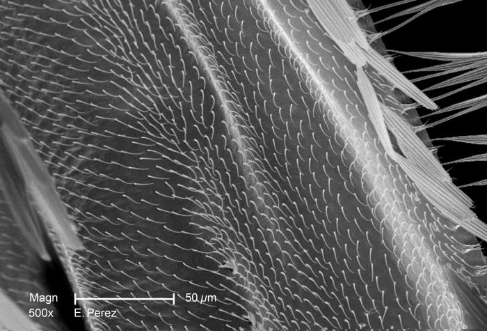 At a magnification of 500X, 3.3X greater than that of PHIL 10513, this scanning electron micrograph (SEM) reveals the presence of numerous s