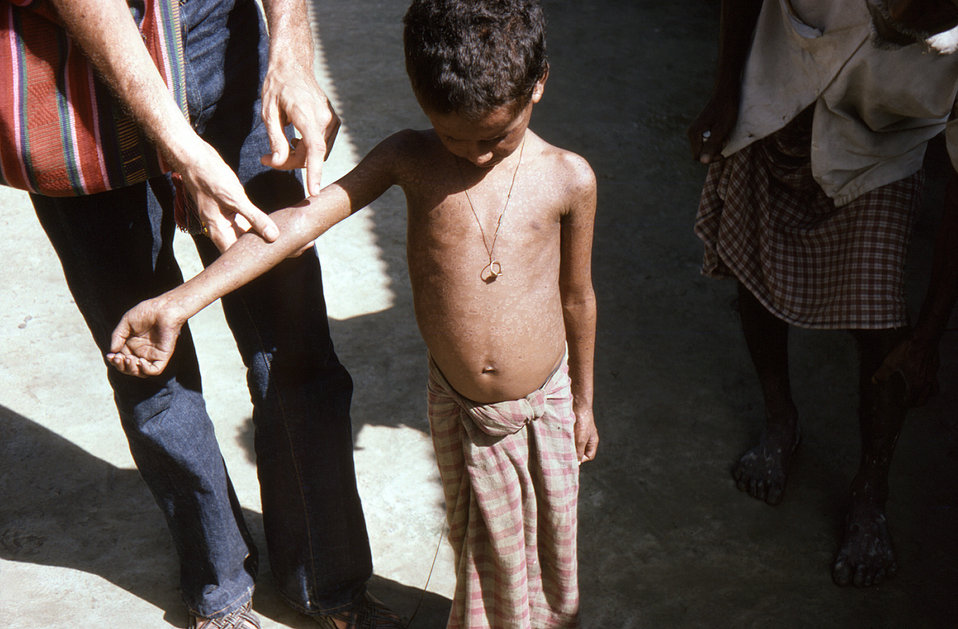 Photographed in the north-eastern Bangladesh District of Sylhet, this child, who was on his way to the United Kingdom, was found to be runni