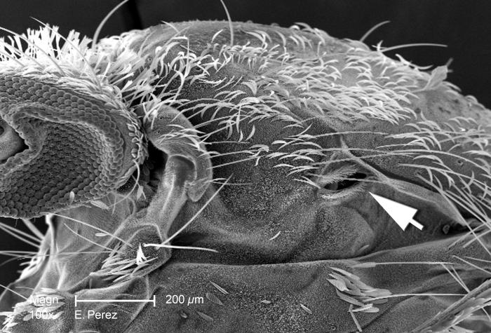 This is the first of four scanning electron micrographs (SEM) that are representative of successively greater magnifications of the thoracic