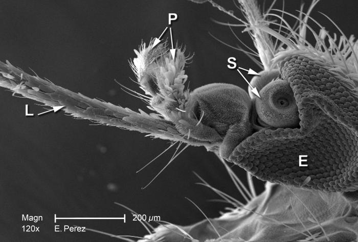 Magnified 250X, this scanning electron micrograph (SEM) is the second of three SEMs (see PHIL 10560, 10562) that are viewed under successive