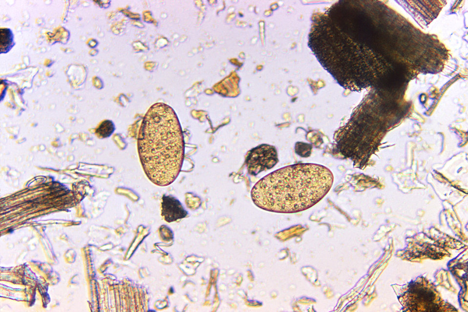 Magnified 125X, this photomicrograph revealed the presence of two Fasciolopsis buski trematode eggs that were found in an unstained formalin