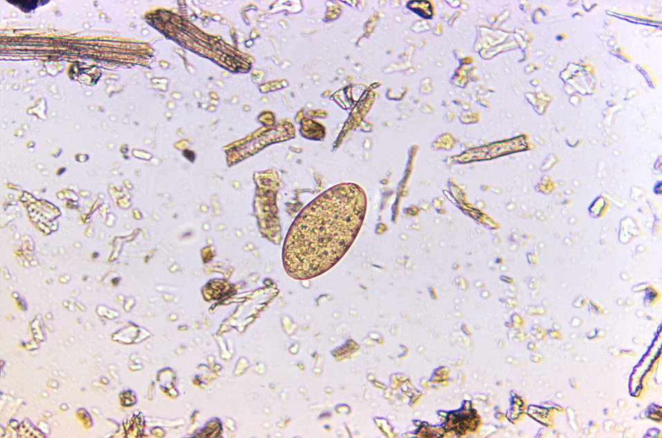 Magnified 125X, this photomicrograph revealed the presence of a Fasciolopsis buski trematode egg that was found in an unstained formalin-pre