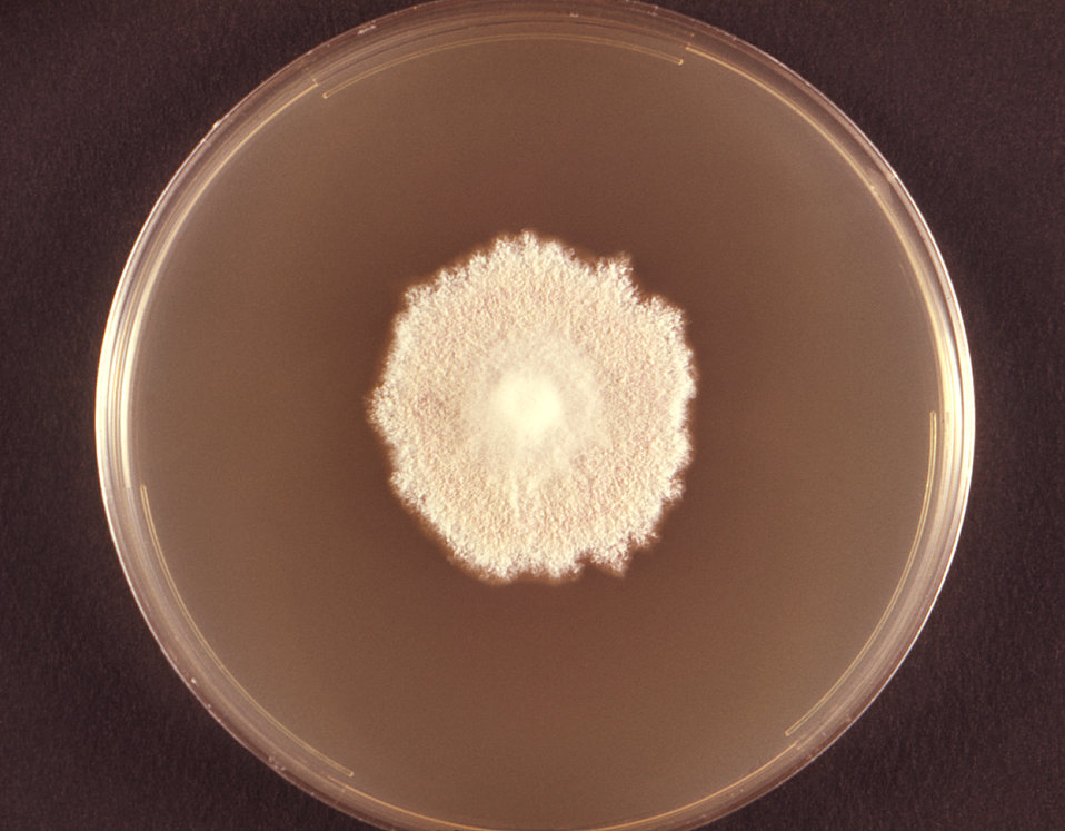 Photographed from the front, this image depicted a Petri dish containing cereal agar, upon which a Microsporum persicolor fungal colony had