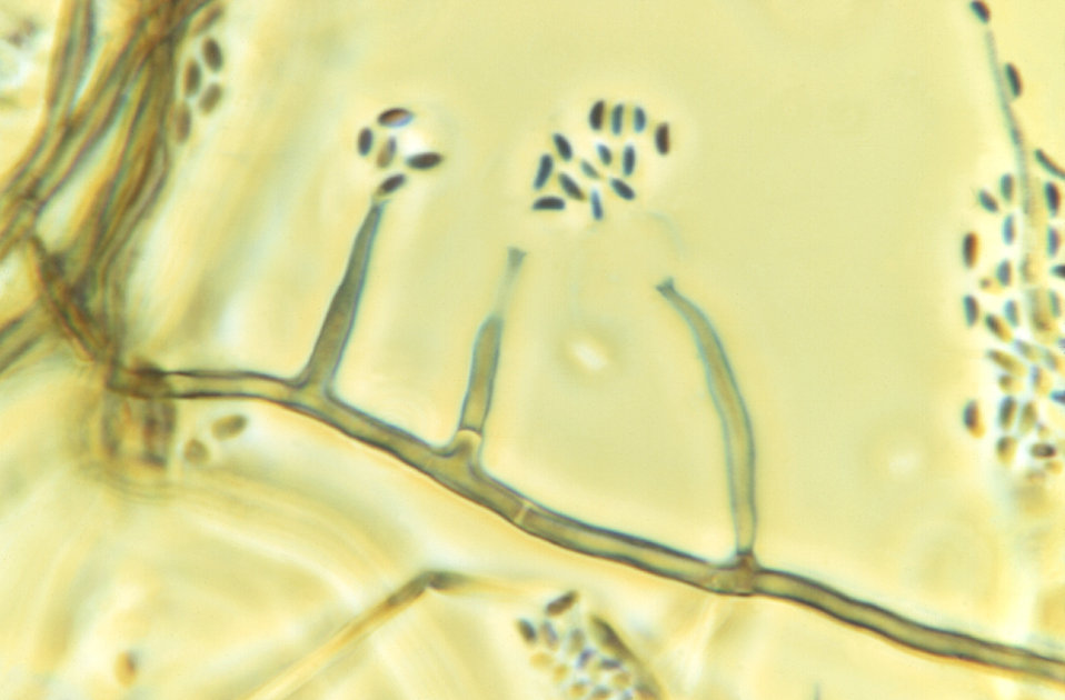 Magnified 1125X, this photomicrograph revealed morphologic details displayed by the fungal organism, Phialophora parasitica. A darkly-pigmen