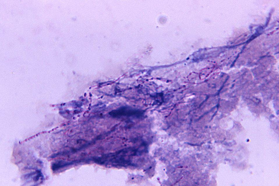 Magnified 1125X, and prepared using a modified-Kinyoun acid-fast staining  technique, under photomicrographic analysis, this lung tissue sme