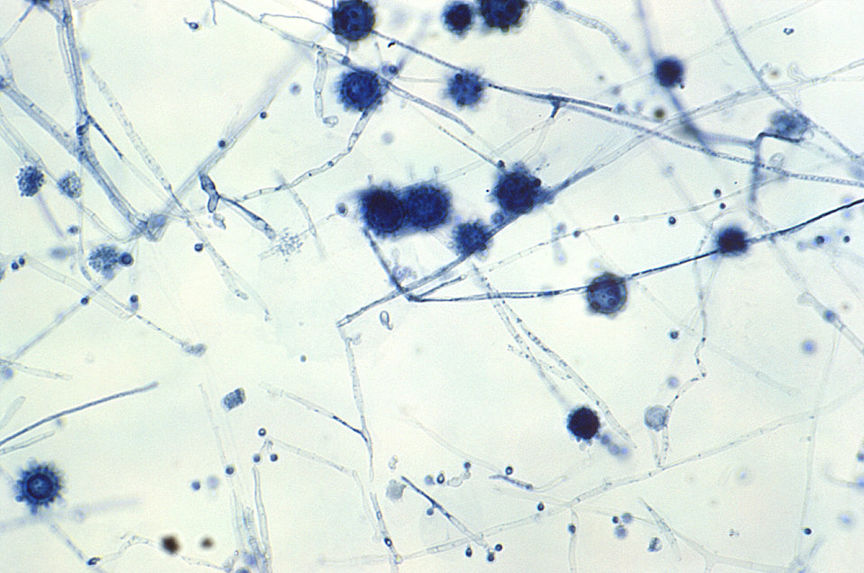At a magnification of 400X, this photomicrograph revealed some of the ultrastructural morphology exhibited by Histoplasma capsulatum fungal