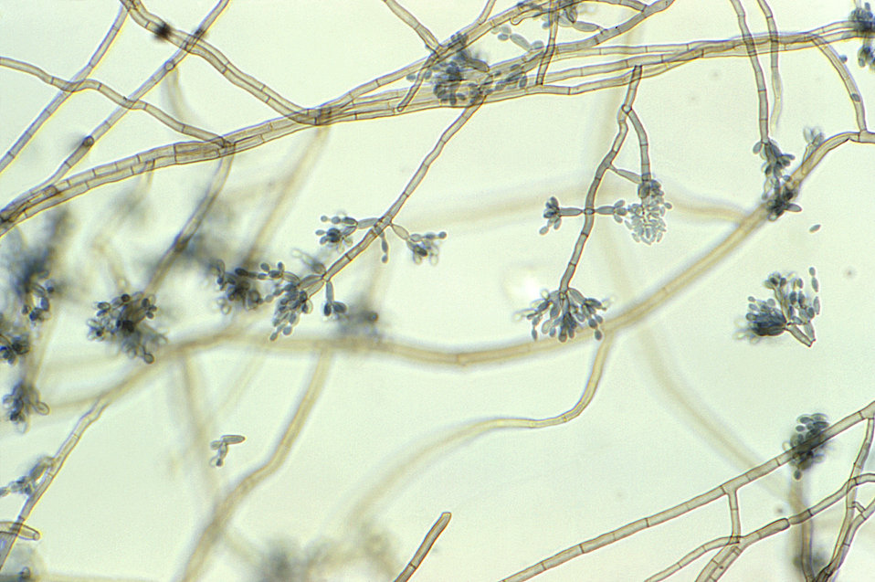 Magnified 400X, this slide culture photomicrograph highlighted some of the ultrastructural morphology exhibited by numbers of Cladosporium s