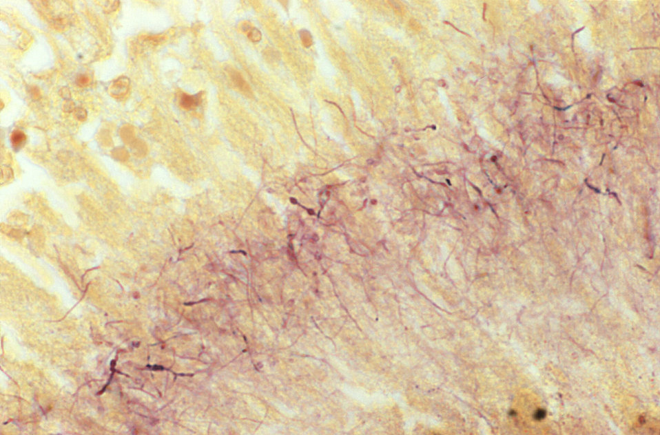 This Brown & Brenn-stained tissue specimen revealed the presence of Gram-positive Actinomadura madurae bacterial organisms.