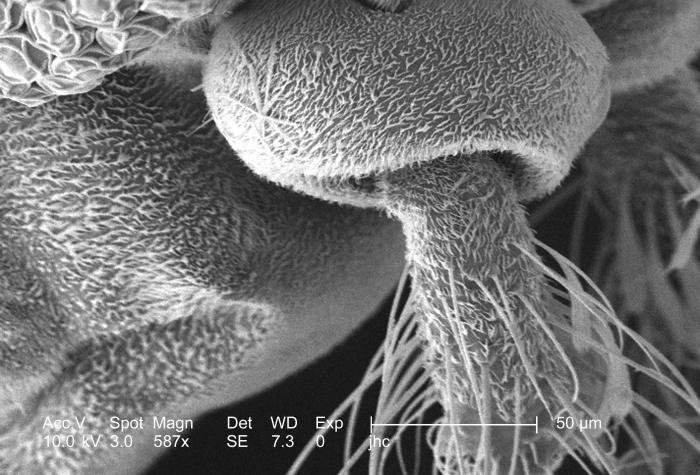 At a moderately high magnification of 587x, this scanning electron micrograph (SEM) revealed some of the morphologic features displayed on t