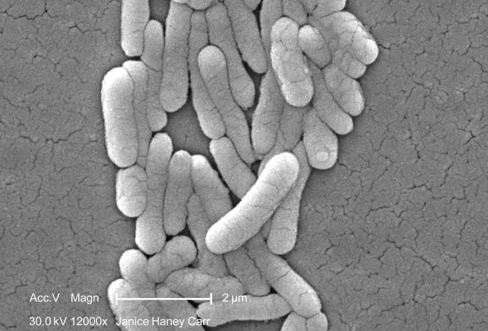 Under a high magnification of 12000X, this scanning electron micrograph (SEM) revealed the presence of numbers of clustered Gram-negative Sa