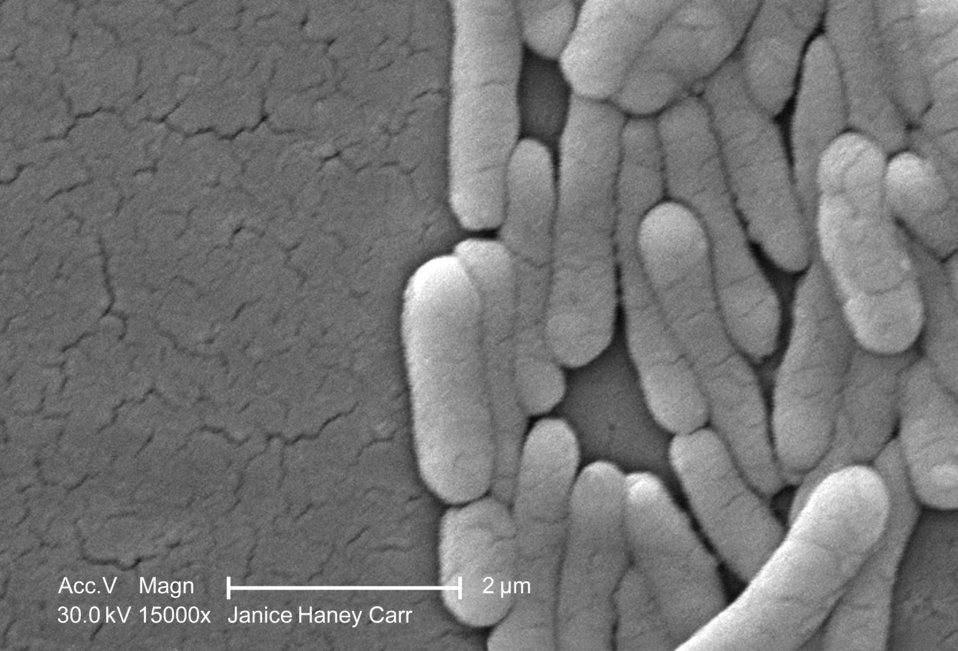 Under a very high magnification of 15000X, this scanning electron micrograph (SEM) revealed the presence of numbers of clustered Gram-negati
