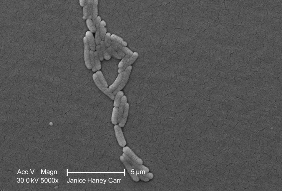 Under a moderate magnification of 5000X, this scanning electron micrograph (SEM) revealed the presence of numbers of clustered Gram-negative